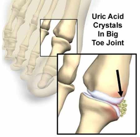 Xét nghiệm acit uric trong cơ thể