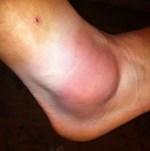 Nguyên nhân gây bệnh viêm khớp mắt cá chân