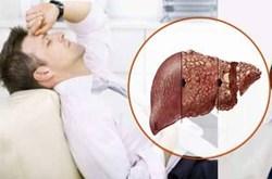 Tránh ung thư gan cho người viêm gan B