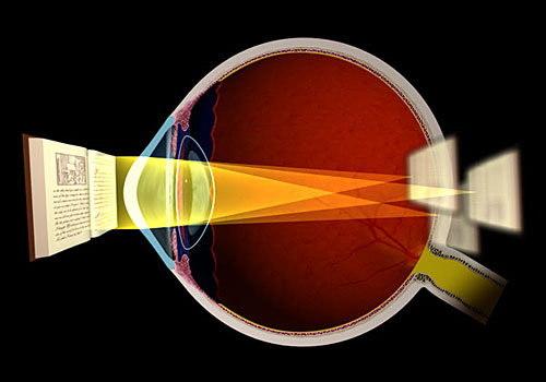 Loạn thị, bệnh loạn thị