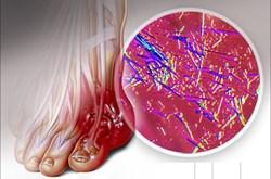 Axit uric tăng tới mức nào thì cần điều trị?