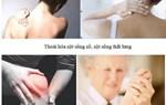 Cách phòng ngừa đau khớp hiệu quả