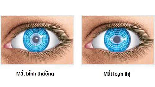 Loạn thị, mắt bị loạn thị