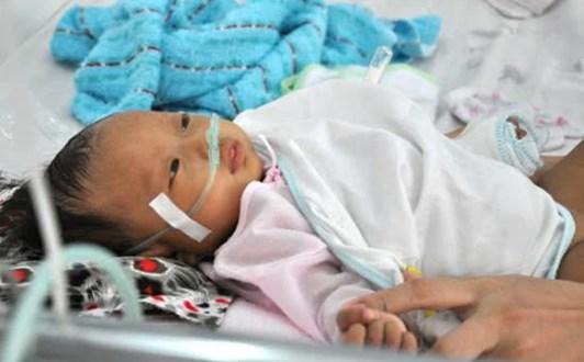 Đếm nhịp thở của trẻ để phát hiện bệnh hô hấp