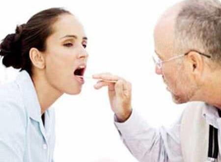 Bệnh nấm họng là gì?