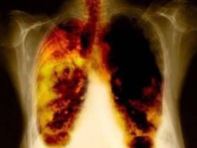 Cơ quan, bộ phận nào trên cơ thể dễ bị ung thư nhất?