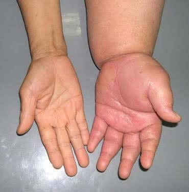 Phù bạch huyết, tay bị phù