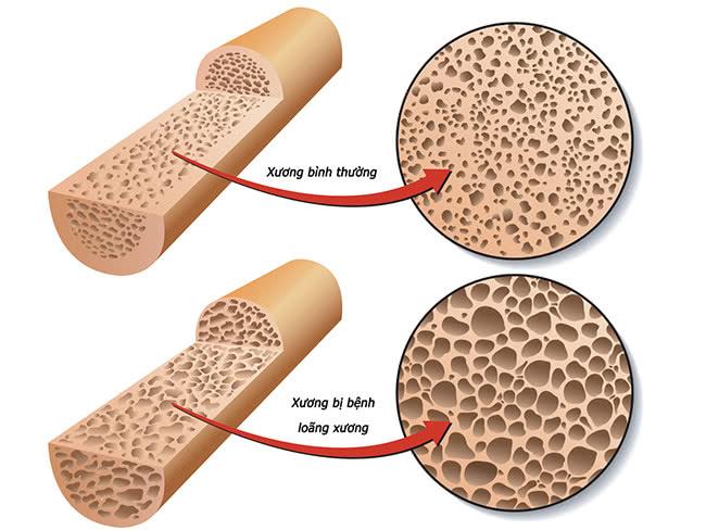 Loãng xương, hình ảnh bệnh loãng xương