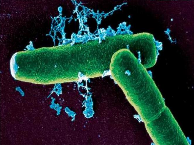 Bệnh than, vi khuẩn bệnh than