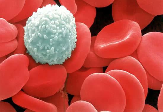 Ung thư máu, hình ảnh ung thư máu
