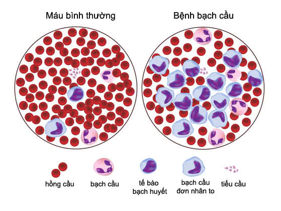 Bệnh bạch cầu, bạch cầu tủy xương mãn tính