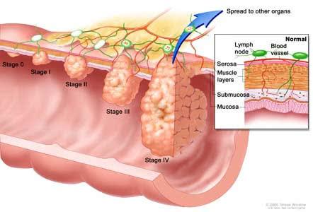 Ung thư đại tràng, hình ảnh ung thư đại tràng