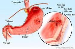 Bệnh loét dạ dày là gì?