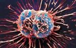 Các bệnh ung thư nguy hiểm khó phát hiện ra