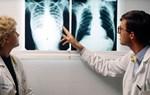 Dấu hiệu, triệu chứng của bệnh lao phổi