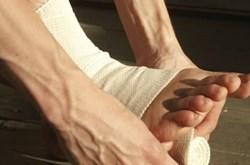 Thuốc chữa bong gân hiệu nghiệm