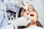 Thời điểm tuyệt đối không nên nhổ răng