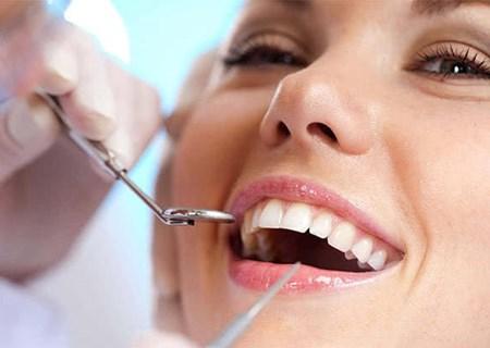 Lấy cao răng có tác dụng gì?