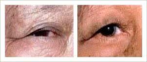 Phẫu thuật quặm mi mắt