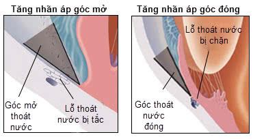Bệnh tăng nhãn áp góc đóng và tăng nhãn áp góc mở
