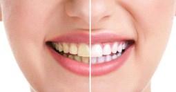 Cách tự lấy cao răng tại nhà