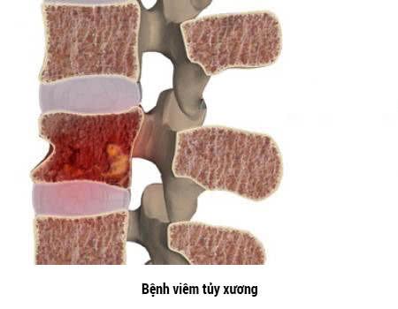 Bệnh viêm tủy xương