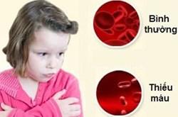 Món ăn và bài thuốc cho người thiếu máu