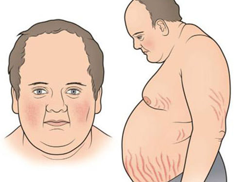 Hội chứng cushing, chữa hội chứng cushing