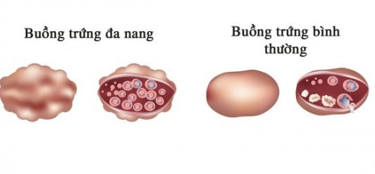 Tìm hiểu về hội chứng buồng trứng đa nang (PCOS)
