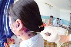 Bệnh thủy đậu ở người lớn và cách điều trị