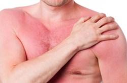 Món ăn bài thuốc giúp chữa dị ứng ngoài da