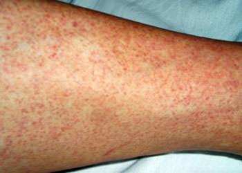 Bệnh sốt Dengue