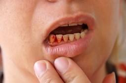 Cách chữa chảy máu chân răng hiệu quả từ nguyên liệu tại nhà