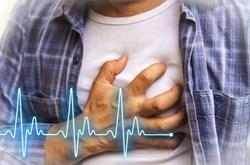 Bệnh đau tim yên lặng là gì?