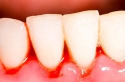 Cách chữa hôi miệng, viêm lợi tại nhà