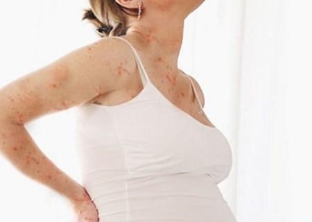 Bị thủy đậu khi mang thai có thể sinh con bị dị tật