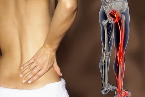 Bài thuốc điều trị đau dây thần kinh hông
