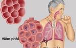 Bị bệnh phổi nên ăn gì?