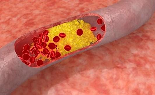 Cách giảm cholesterol trong máu