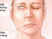 Những bệnh dễ nhầm với biểu hiện của đột quỵ não