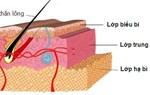 Bài thuốc trị viêm da