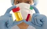 Đi tiểu ra nước tiểu có màu đỏ là bệnh gì?