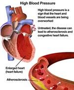 Chữa bệnh cao huyết áp bằng cúc bách nhật
