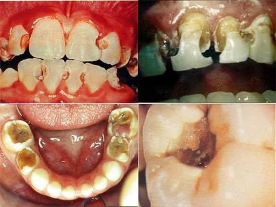 Sâu răng, bệnh sâu răng