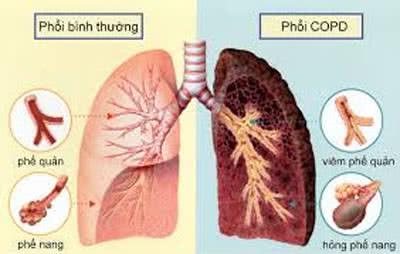 khó thở so mắc bệnh về phổi