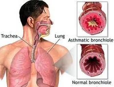 Khó thở do mắc bệnh về phế quản