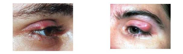 Cách phân biệt bệnh chắp và lẹo mắt 1