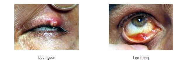 Cách phân biệt bệnh chắp và lẹo mắt 2