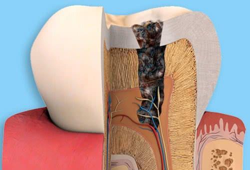 Cách nhận biết trẻ bị sâu răng 1