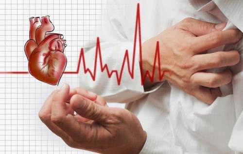 Bệnh tim mạch, hội chứng đánh trống ngực